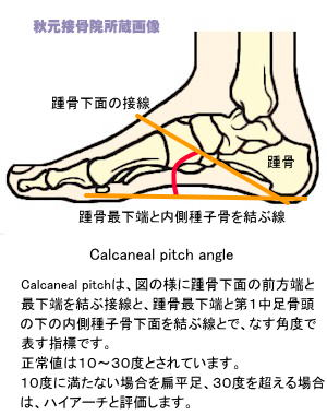 Calcaneal_pitch_angle